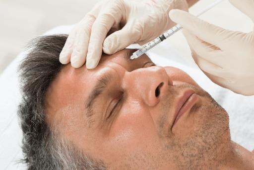 Injektion Zornesfalte - Mann erhält Unterspritzung