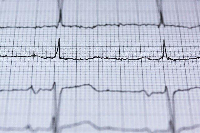 EKG Herzaktiviät